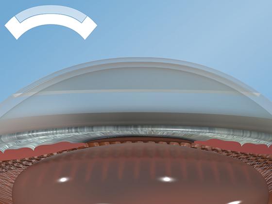 Глубокая передняя послойная кератопластика (FS-DALK)