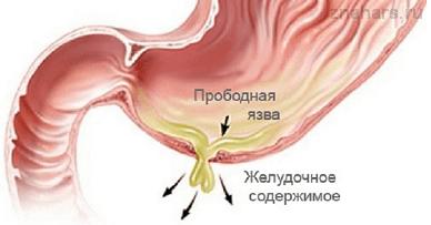 Осложнение в веде прободной язвы желудка с перфорацией