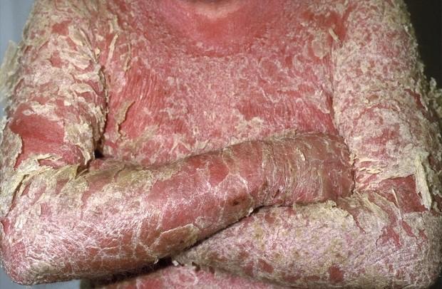 psoriasis-types-erythrodermic-1