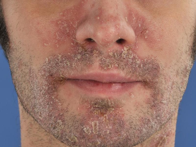 Поражение лицевой части