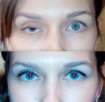 До и после операции по устранению птоза