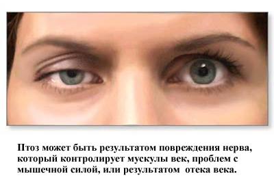 Одна из причин опущения века - повреждение нерва