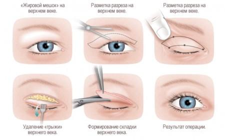 Схема проведения операции