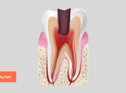 Этапы лечения пульпита зуба