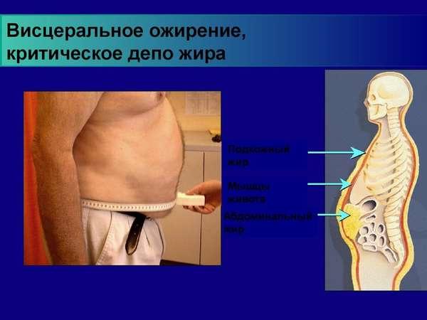 6 типов ожирения - виды патологии, способы терапии, последствия