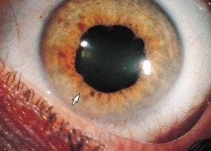 Поражение зрительного нерва. Ретробульбарный неврит