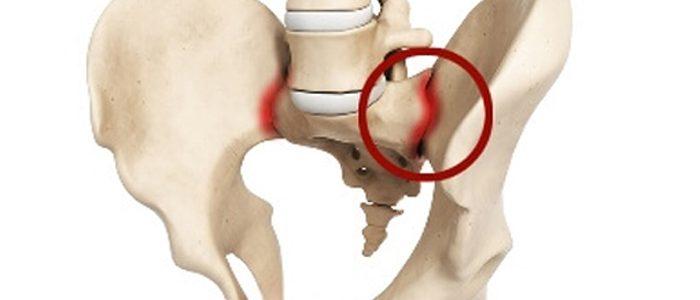 Сакроилеит крестцово-подвздошного сустава. Симптомы и лечение, что это такое, степени, гимнастика