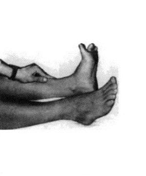 Болезнь Штрюмпеля: симптомы и лечение