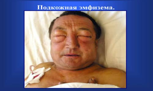 Подкожная эмфизема представляет собой скопление воздуха в органах или тканях
