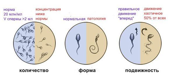 спермограмму сдать