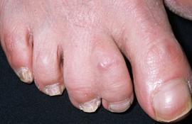 Сросшиеся пальцы на ногах причины симптомы и лечение