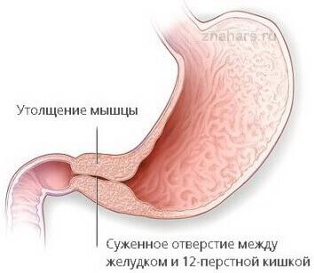 Стеноз привратника при осложнении язвенной болезни желудка