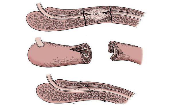 Анастотомическая пластика уретры