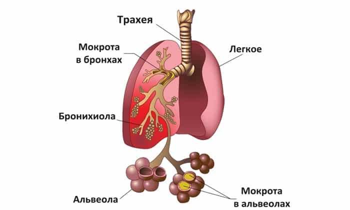 При пневмонии препарат принимают 7-14 суток