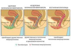 Дисбактериоз в гинекологии симптомы у мужчин —