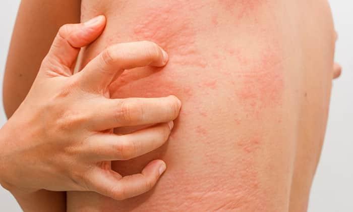 Нарушения со стороны кожи - выраженный и сильный зуд, отек, крапивница, могут быть в результате побочных эффектов от приема препарата