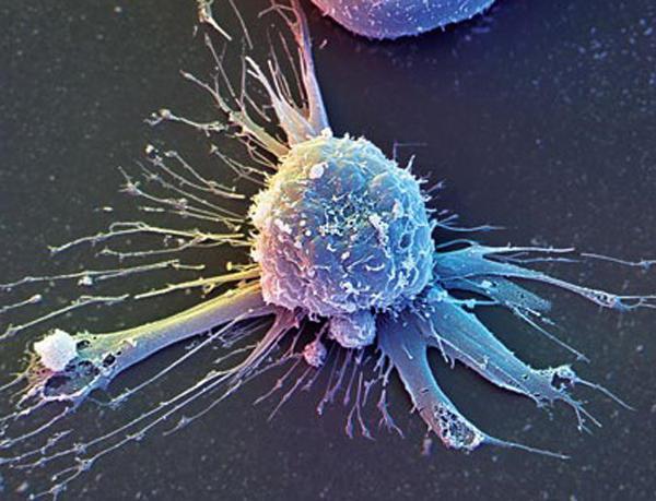 SCC онкомаркер - норма, причины повышений у женщин