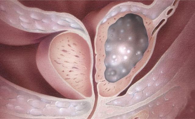 предстательная железа рак