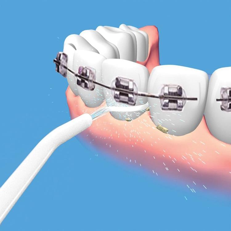 Сам себе стоматолог: какой ирригатор полости рта лучше выбрать в 2018 году