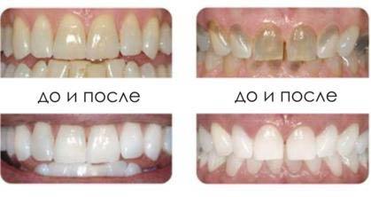 до и после лазерного отбеливания