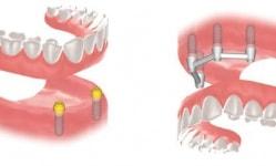 Конструкции для протезирования