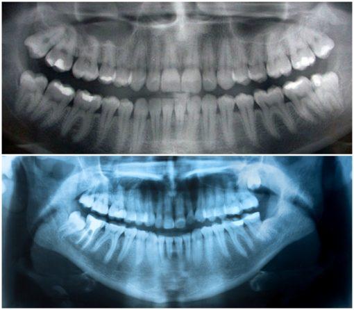 сделать ортопантомограмму в москве