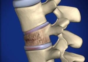 Компрессионные переломы позвонков у детей - диагностика и лечение