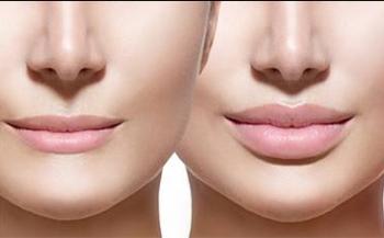 Контурная пластика губ - сравнение до и после
