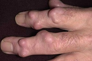 Многокамерная гигрома руки