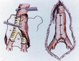 Вид аорты после хирургического вмешательства
