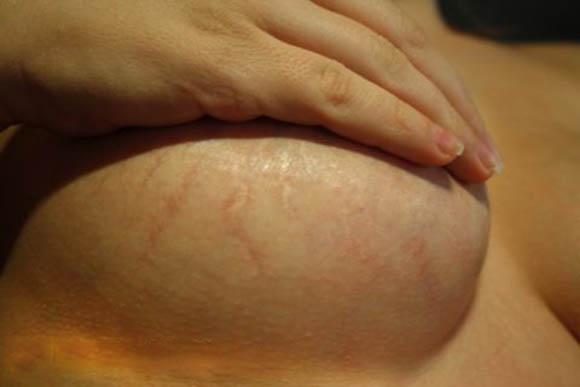 Паучьи вены на груди могут быть нестандартным признаком беременности.