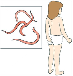 Энтеребиоз это паразитарное заболевание которое вызывает зуд возле анального отверсия