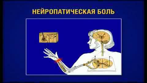В этой статьи мы узнаем что такое нейропатическая боль.