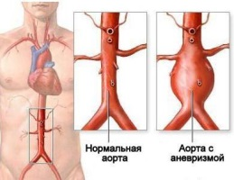 Больная и здоровая брюшные аорты