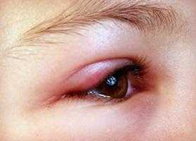 Аллергическим блефарит
