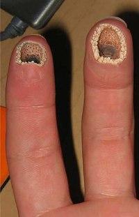 трипофобия фото на коже человека