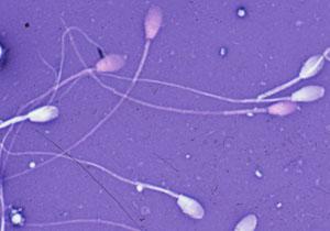Астенозооспермия что это и как с ней бороться.