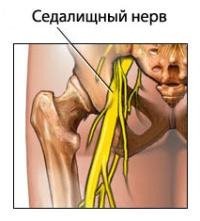 Седалищный нерв. Где и как он расположен