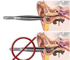 Запрет на железные предметы в ухе