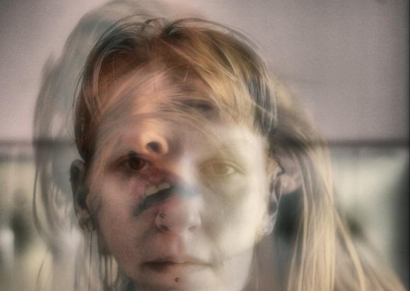 От сильного ушиба у вас могут возникнуть галлюцинации и спутанность сознания.