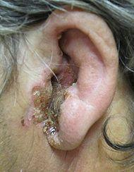 Гнойная инфекция в ухе