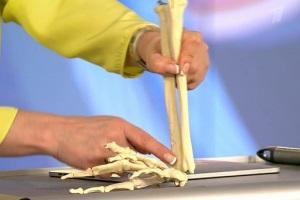 Падение на руку может вызвать гигрому.