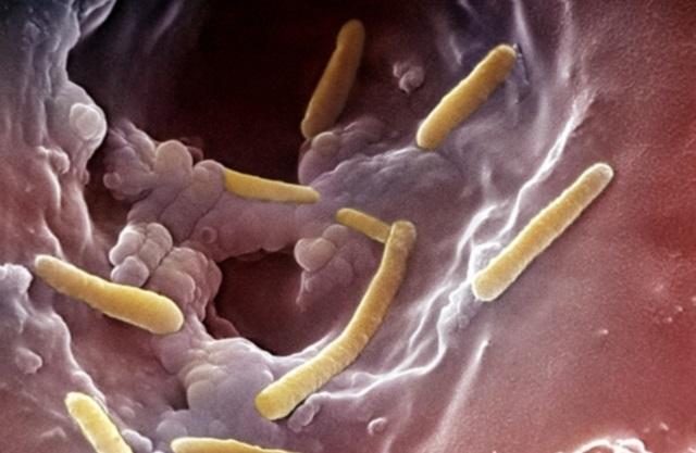 Инфекция в мочевыводящих путях