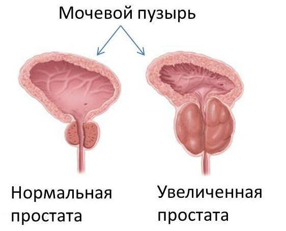Увеличенная простата