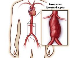 Все о аневризма брюшной аорты.