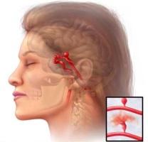 Действия при аневризме головного мозга.