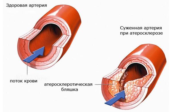 Атеросклероз позвоночной артерии