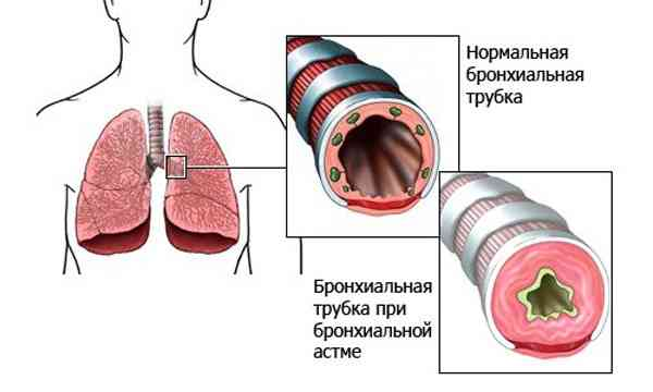 бронхиальная астма является ли инвалидностью