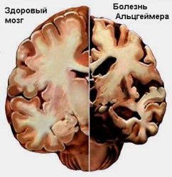 При регулярном употреблении может возникнуть болезнь Альцгеймера.