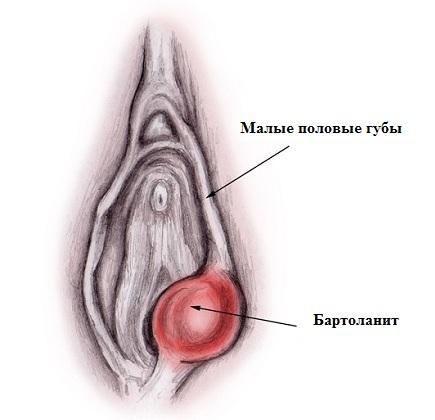 Рисунок половых губ